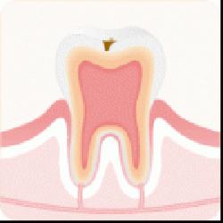 C1:むし歯の初期症状