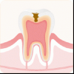 C2:象牙質まで進行