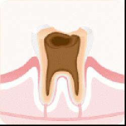 C4:むし歯の末期症状
