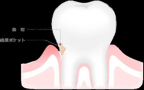 歯周病の自覚症状
