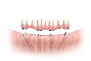 入れ歯から固定式の歯へ