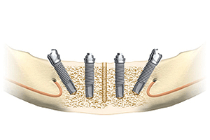 ALL-ON-4(オールオン4) 1日で歯が入るインプラント治療