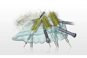 サージカルテンプレートで安全・確実なインプラント手術